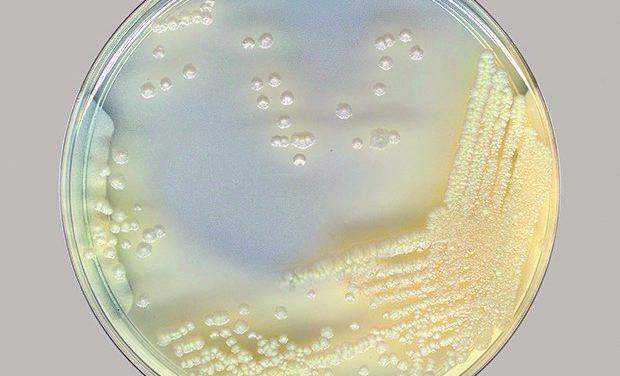 Chronic Respiratory Diseases: Think Non-Tuberculous Mycobacteria!