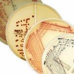 Gama CHROMID® MDRO: A sua estratégia direcionada para o ajudar no controlo de infeções e a gestão antimicrobiana