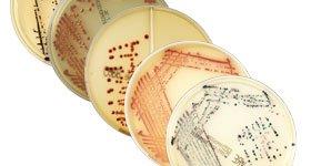 Gama CHROMID® MDRO: Su estrategia dirigida para apoyar el control de la infección y la administración antimicrobiana